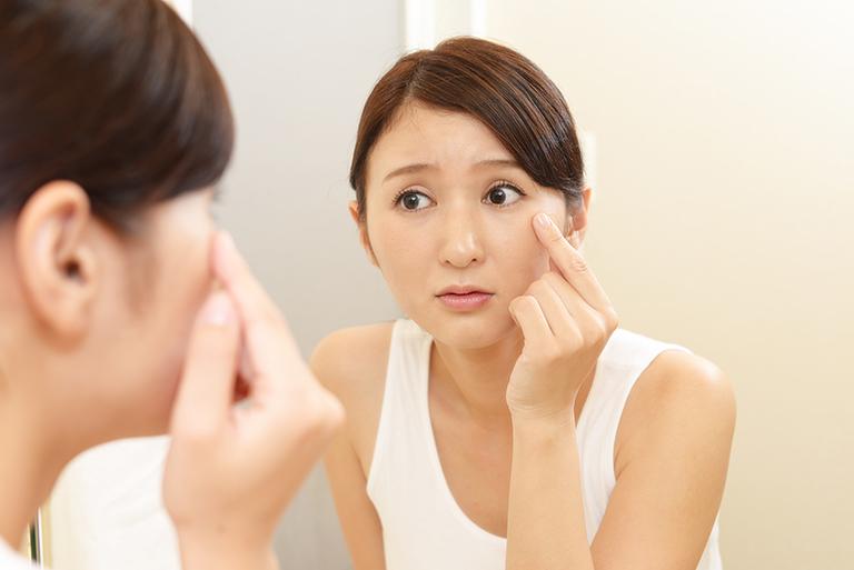 顔のシミの種類と対策方法